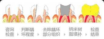 蛀牙补牙过程过程