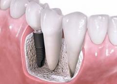 做种植牙需要拔掉牙根吗