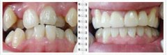 隐形牙齿矫正有什么不良后果